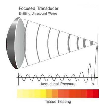 ultrasound surgery technology
